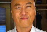 Steve Kim Bald